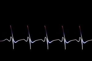 Herzrasen, Puls Dampfen