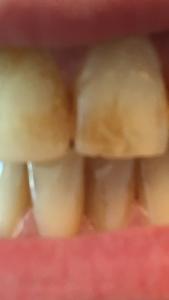 Verfärbungen auf Zähnen