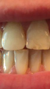 Zahnverfärbungen entfernt