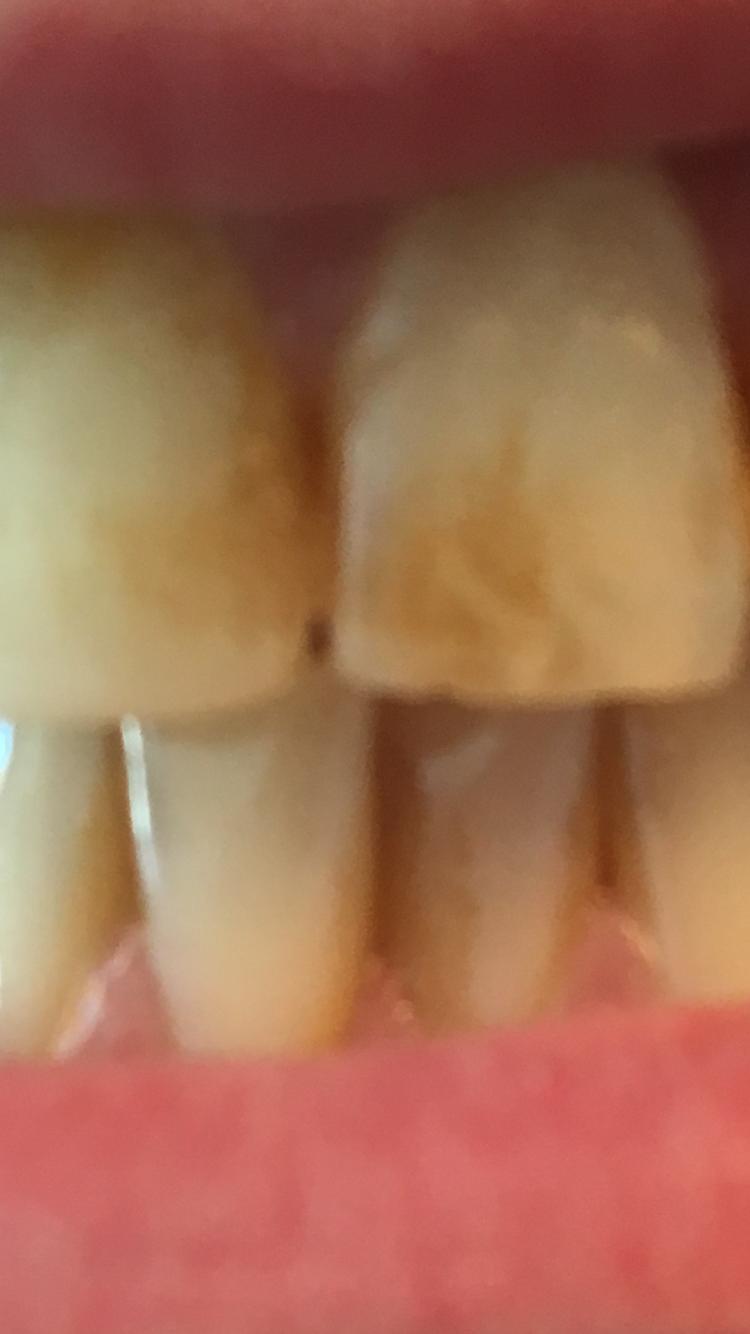 Brauner fleck auf zahn